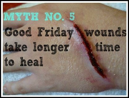 Good Friday wounds take longer time to heal + health myths in the philippines